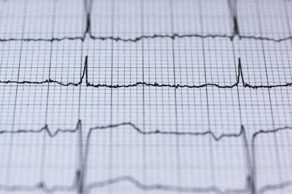 badanie ekg zdrowe serce