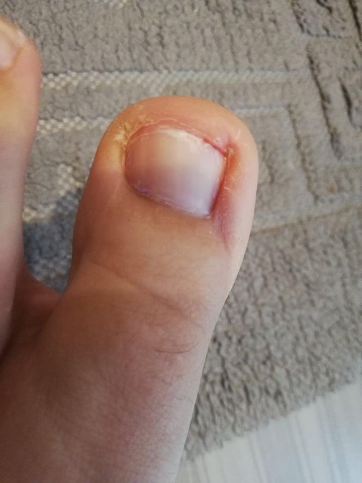 zaniedbany, wrastający paznokieć